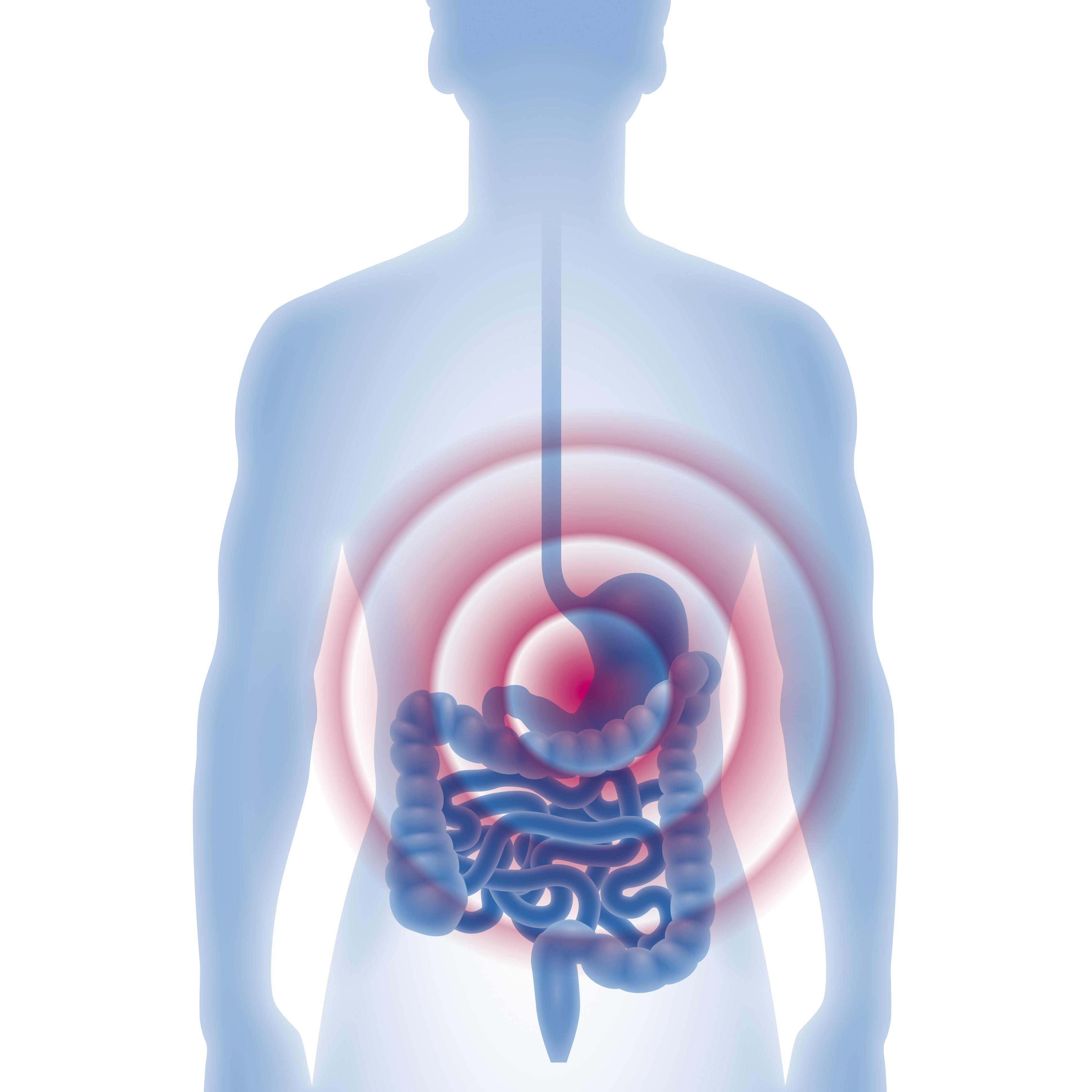 Dünn- und Dickdarm | Allgemein- und Viszeralchirurgie