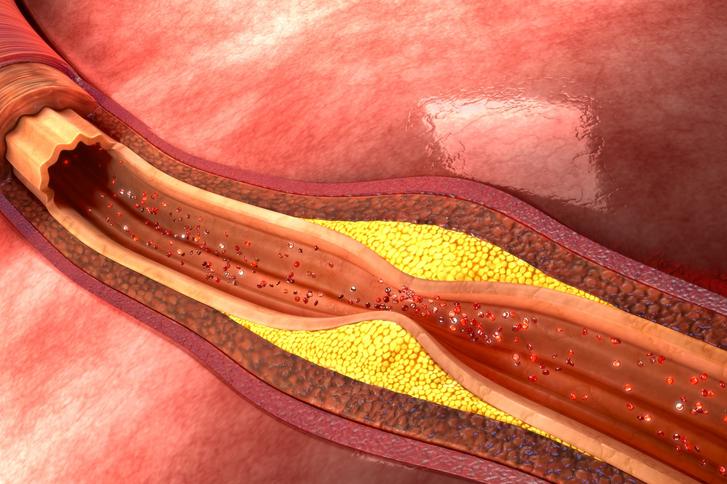 Thrombose Wie Erkennen