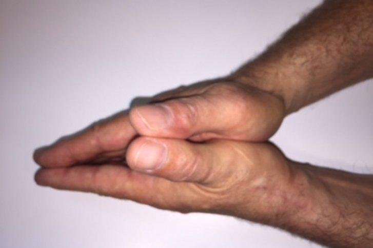 Behandlung von arthrose der daumenbasisaln, der chirurgische...