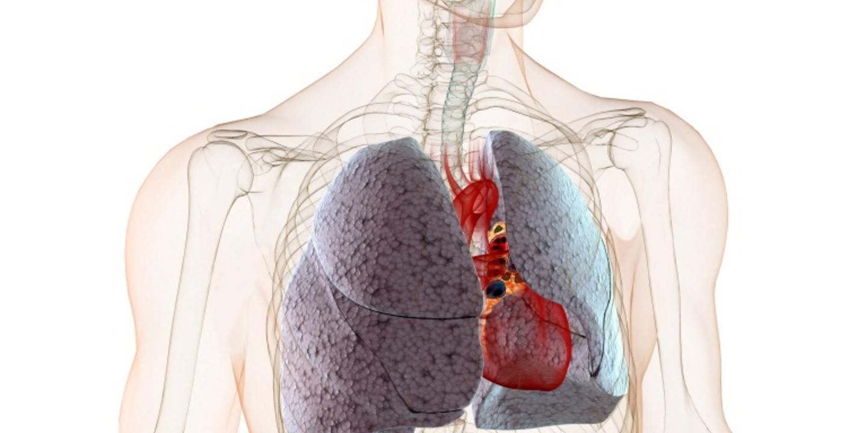 was ist eine lungenfibrose