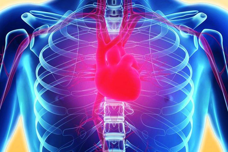 Köthen Herzinfarkt