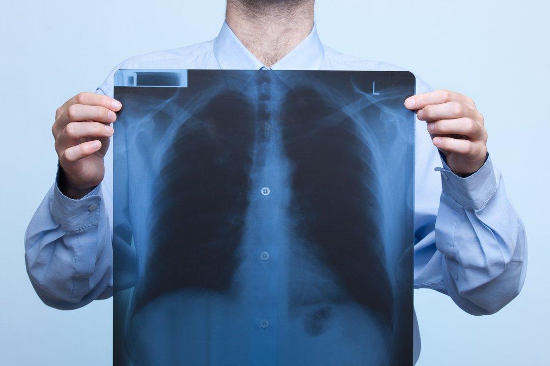 Wie man nach Chemotherapie und Bestrahlung zunimmt