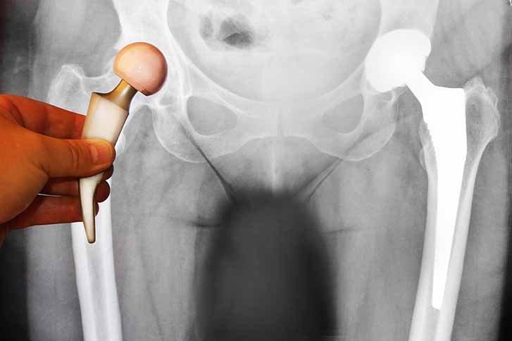 Osteochondrose des Hüftgelenks: Wie geht man damit um?