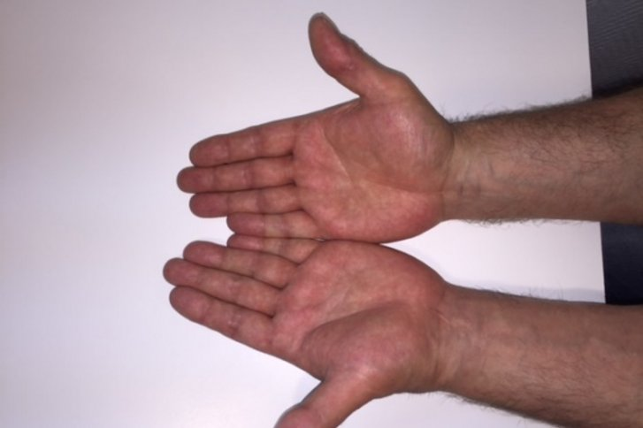 Arthrose des Daumensattelgelenkes (Rhizarthrose)