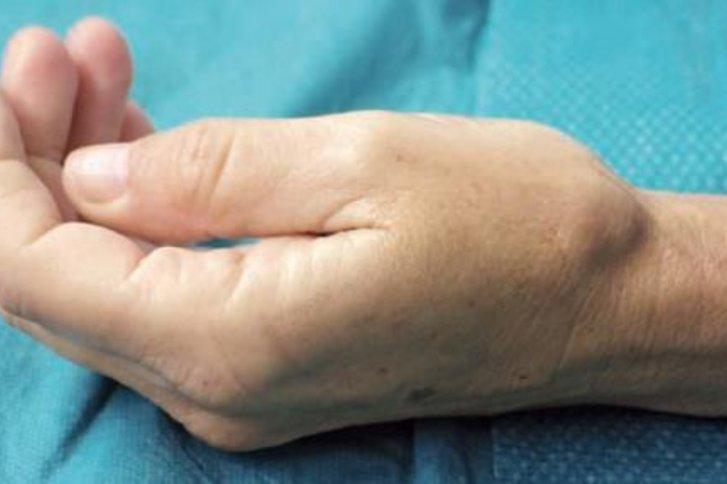 Arthrose in den Fingergelenken: Was hilft?