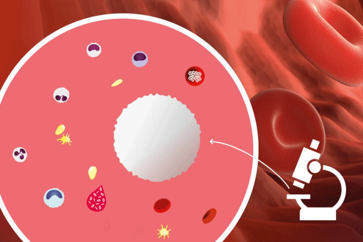 Thrombozyten erhöht ursache